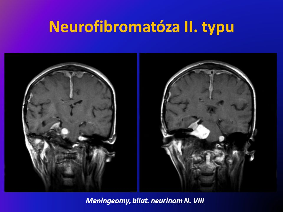 Neurofibromatóza II. typu Meningeomy, bilat. neurinom N. VIII