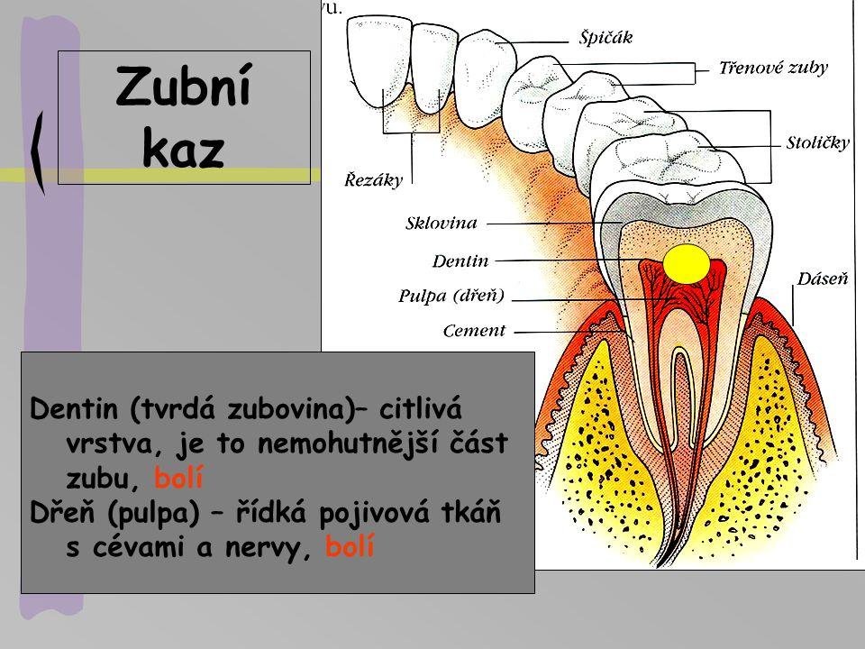 Zubní kaz Dentin (tvrdá zubovina)– citlivá vrstva, je to nemohutnější část zubu, bolí Dřeň (pulpa) – řídká pojivová tkáň s cévami a nervy, bolí