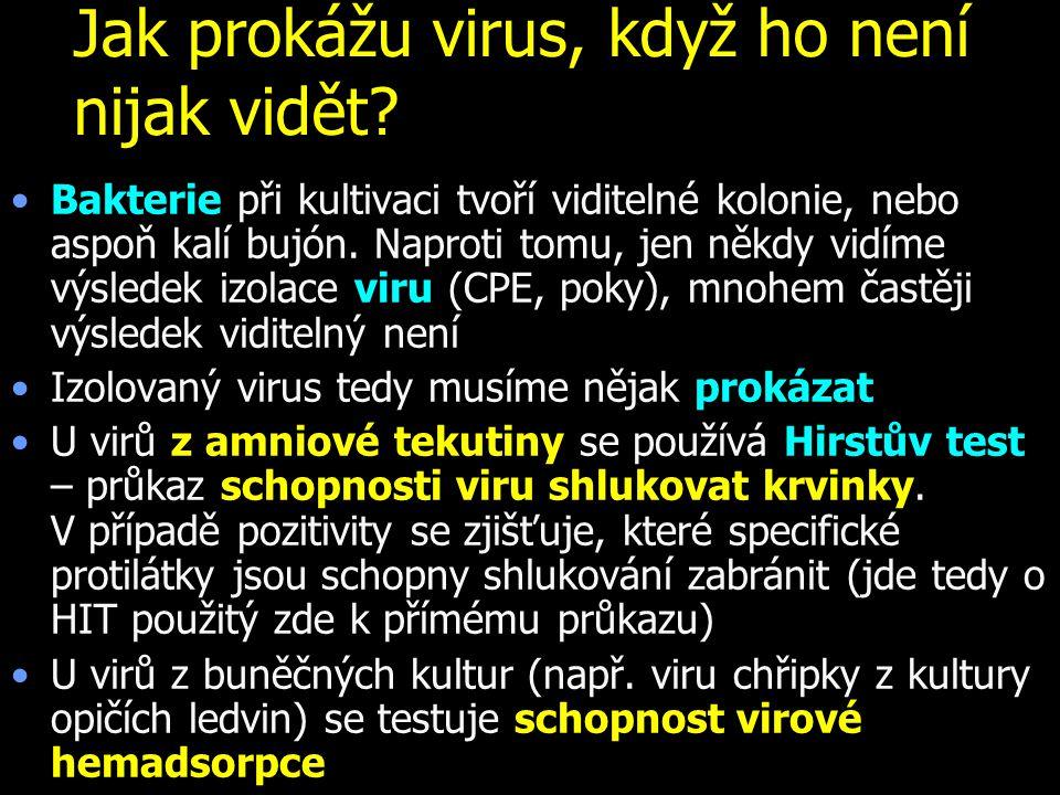 Jak prokážu virus, když ho není nijak vidět.