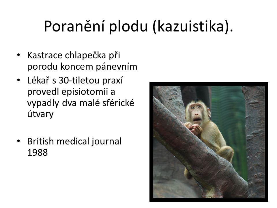 Poranění plodu (kazuistika). Kastrace chlapečka při porodu koncem pánevním Lékař s 30-tiletou praxí provedl episiotomii a vypadly dva malé sférické út