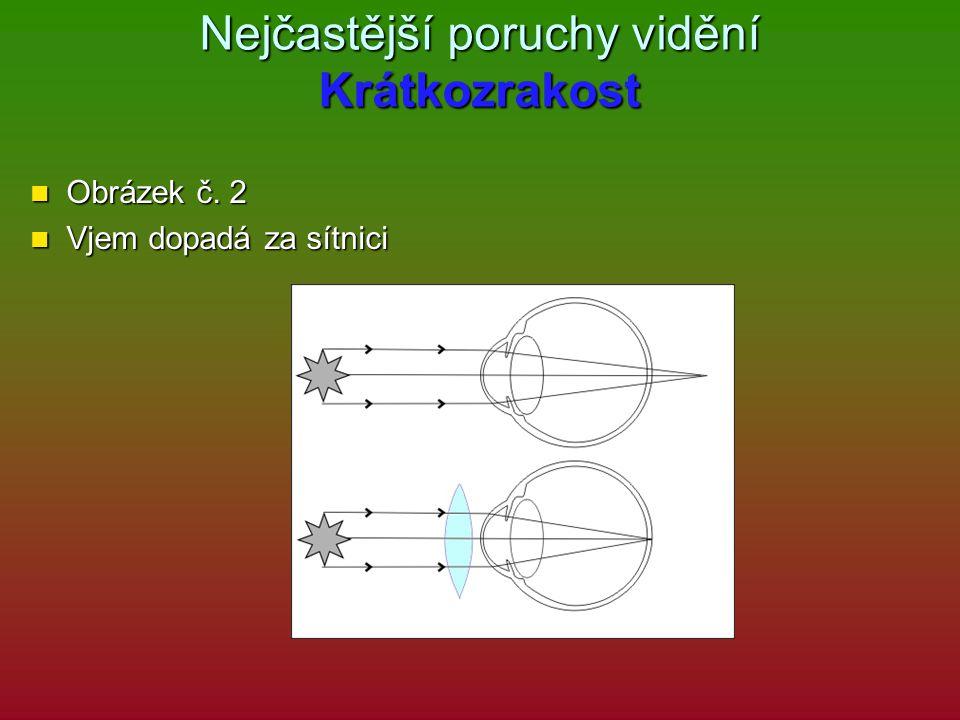 Nejčastější poruchy vidění Krátkozrakost Obrázek č. 2 Obrázek č. 2 Vjem dopadá za sítnici Vjem dopadá za sítnici