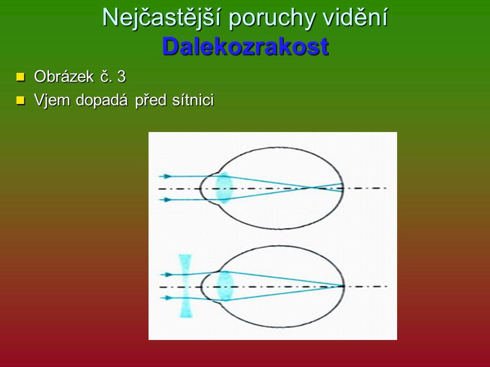 Nejčastější poruchy vidění Dalekozrakost Obrázek č. 3 Obrázek č. 3 Vjem dopadá před sítnici Vjem dopadá před sítnici