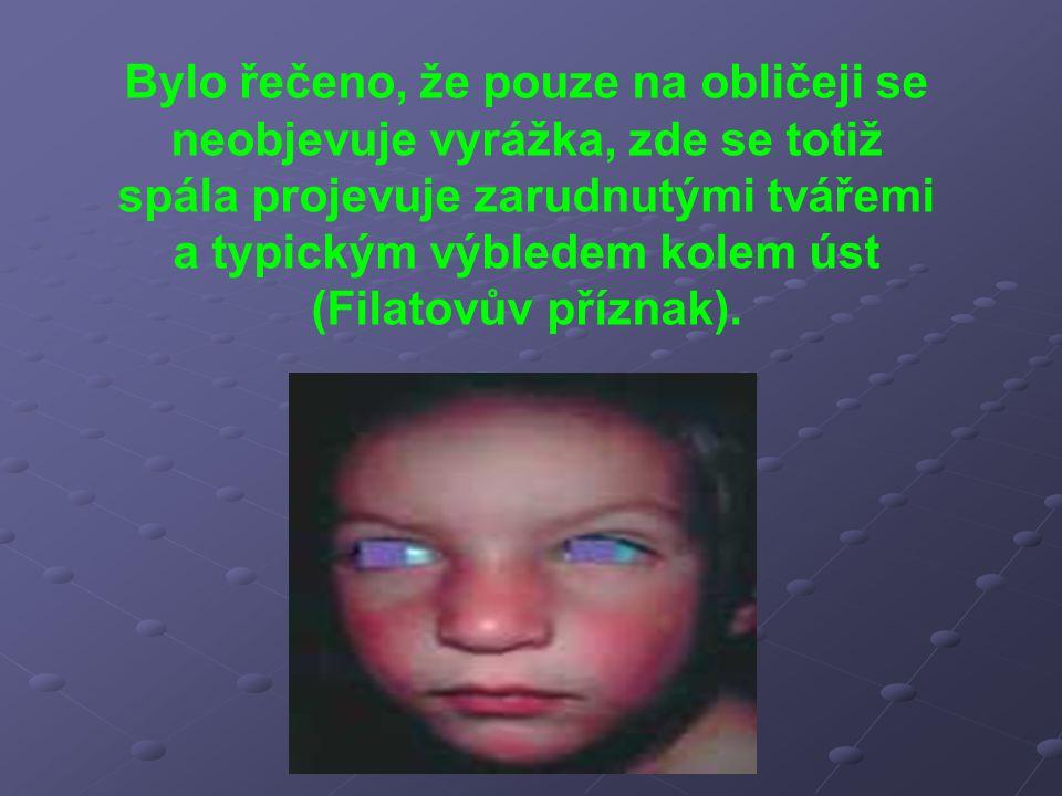Bylo řečeno, že pouze na obličeji se neobjevuje vyrážka, zde se totiž spála projevuje zarudnutými tvářemi a typickým výbledem kolem úst (Filatovův pří