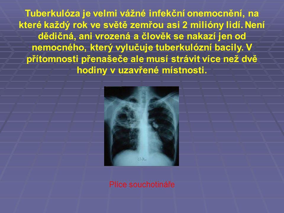 Tuberkulóza je velmi vážné infekční onemocnění, na které každý rok ve světě zemřou asi 2 milióny lidí. Není dědičná, ani vrozená a člověk se nakazí je