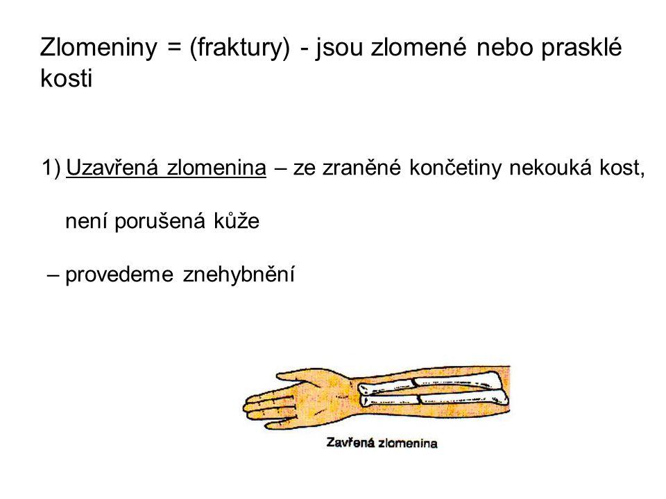 Zlomeniny = (fraktury) - jsou zlomené nebo prasklé kosti 1)Uzavřená zlomenina – ze zraněné končetiny nekouká kost, není porušená kůže – provedeme zneh