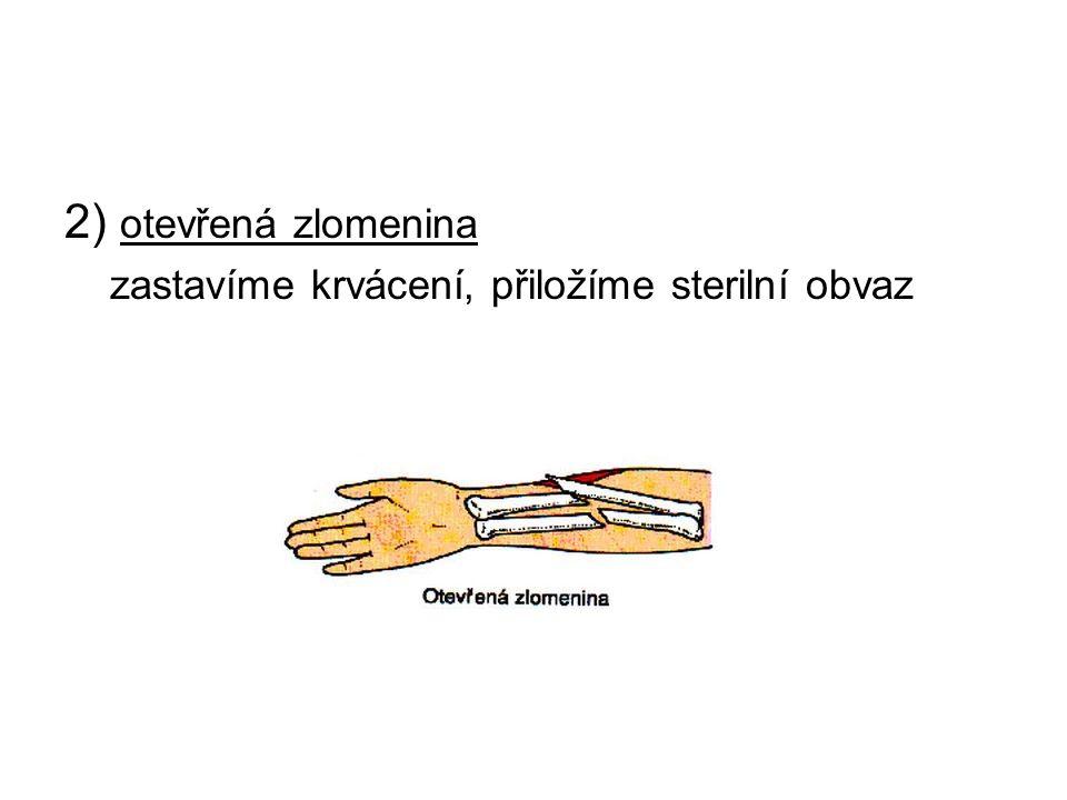 2) otevřená zlomenina zastavíme krvácení, přiložíme sterilní obvaz
