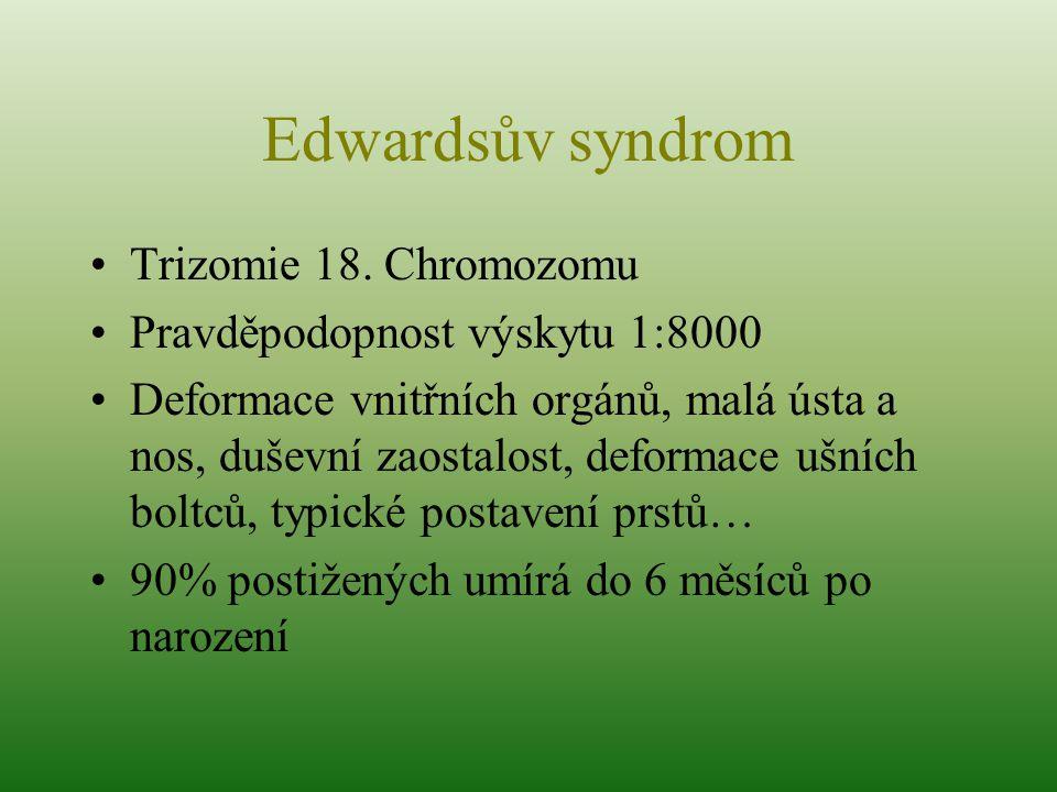 Trizomie 18. Chromozomu Pravděpodopnost výskytu 1:8000 Deformace vnitřních orgánů, malá ústa a nos, duševní zaostalost, deformace ušních boltců, typic