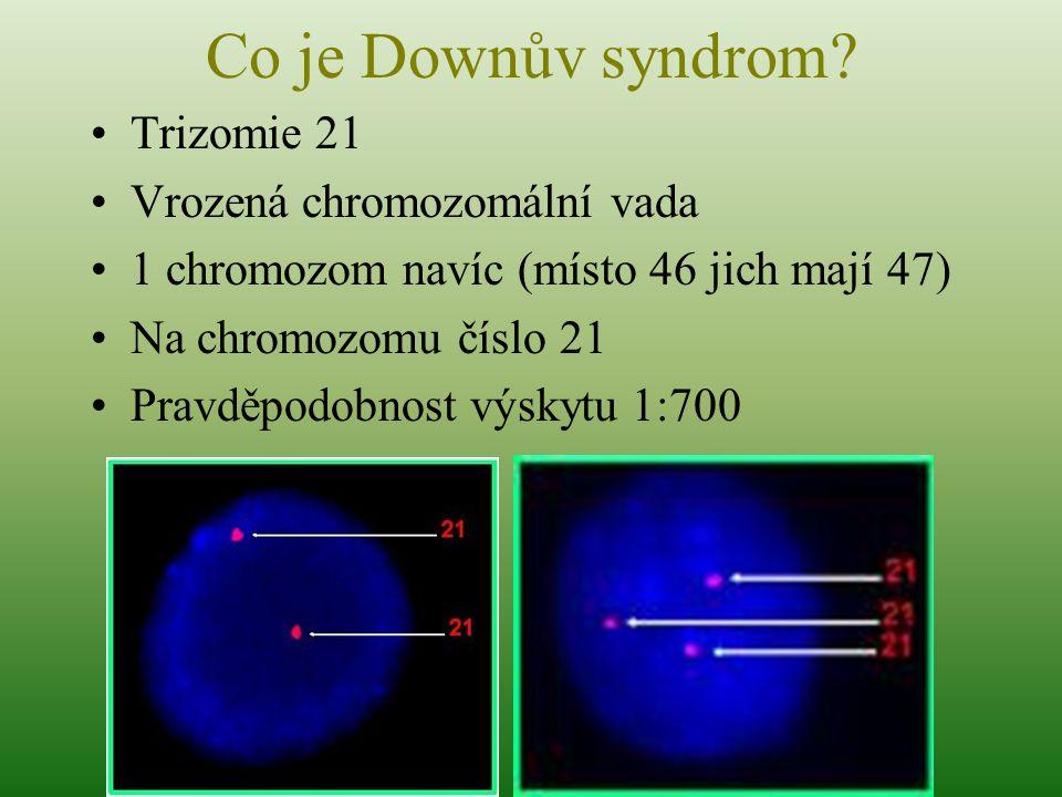 Co je Downův syndrom? Trizomie 21 Vrozená chromozomální vada 1 chromozom navíc (místo 46 jich mají 47) Na chromozomu číslo 21 Pravděpodobnost výskytu