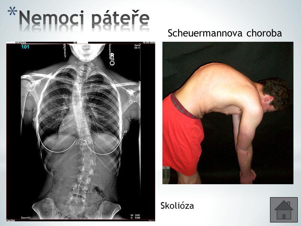 Scheuermannova choroba Skolióza