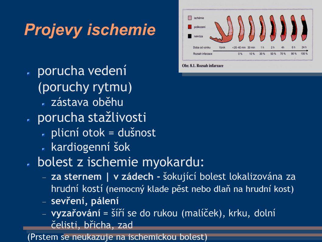 Projevy ischemie porucha vedení (poruchy rytmu) zástava oběhu porucha stažlivosti plicní otok = dušnost kardiogenní šok bolest z ischemie myokardu:  za sternem | v zádech - šokující bolest lokalizována za hrudní kostí (nemocný klade pěst nebo dlaň na hrudní kost)  sevření, pálení  vyzařování = šíří se do rukou (malíček), krku, dolní čelisti, břicha, zad (Prstem se neukazuje na ischemickou bolest)