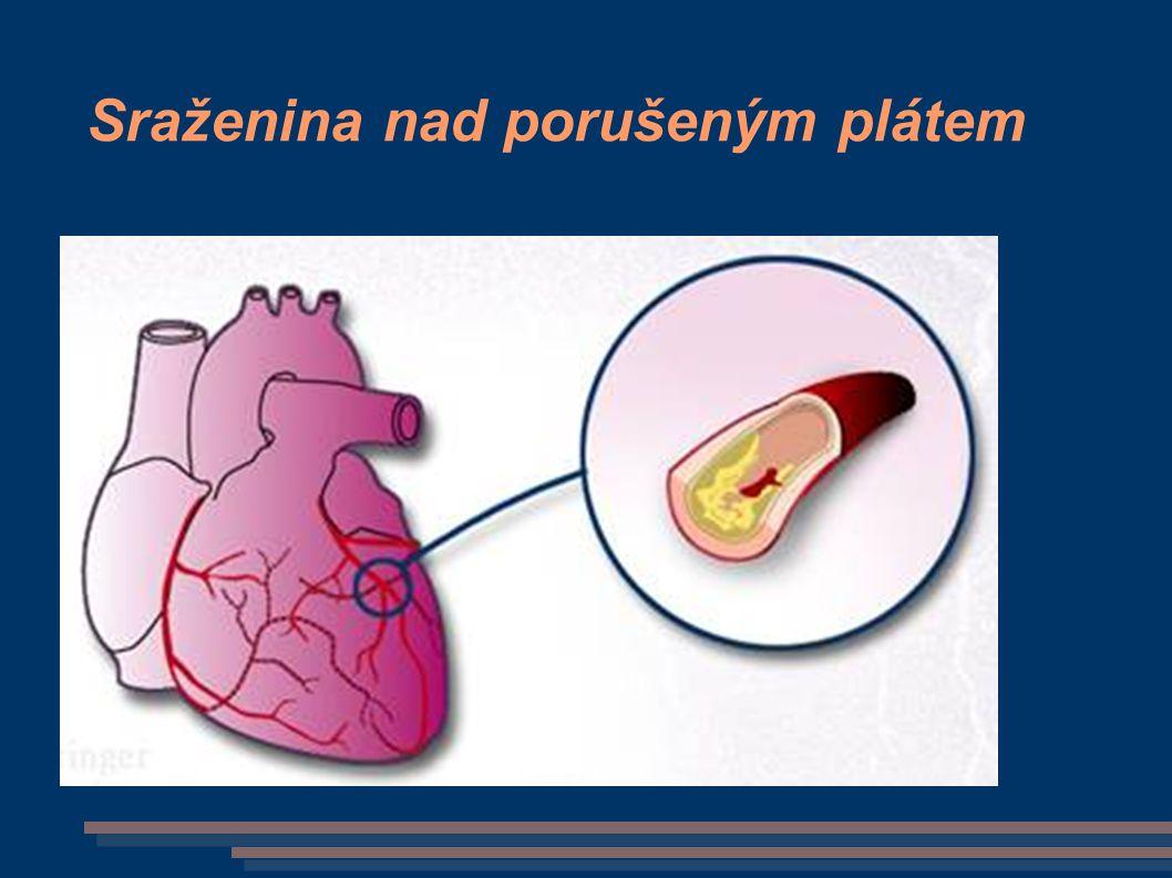 Tonutí - patofyziologie Po ponoření – vůlí potlačeno dýchání  pokles O 2 v krvi, v mozku  porušena volní kontola   voda do úst – polykána voda v horních dýchacích cestách  reflexní stah hlasivek voda dýchána do plic - v alveolu se vstřebává do krve příčinou zástavy oběhu - hypoxie otok plic, mozku, poškození a rozpad červených krvinek = šok