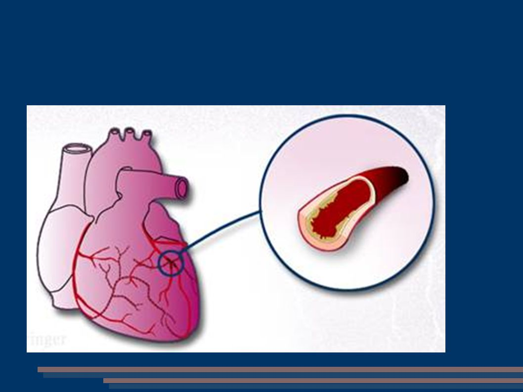 Plicní embolie Embolus = vmetek cizí materiál obturující tepnu Odumření bb.