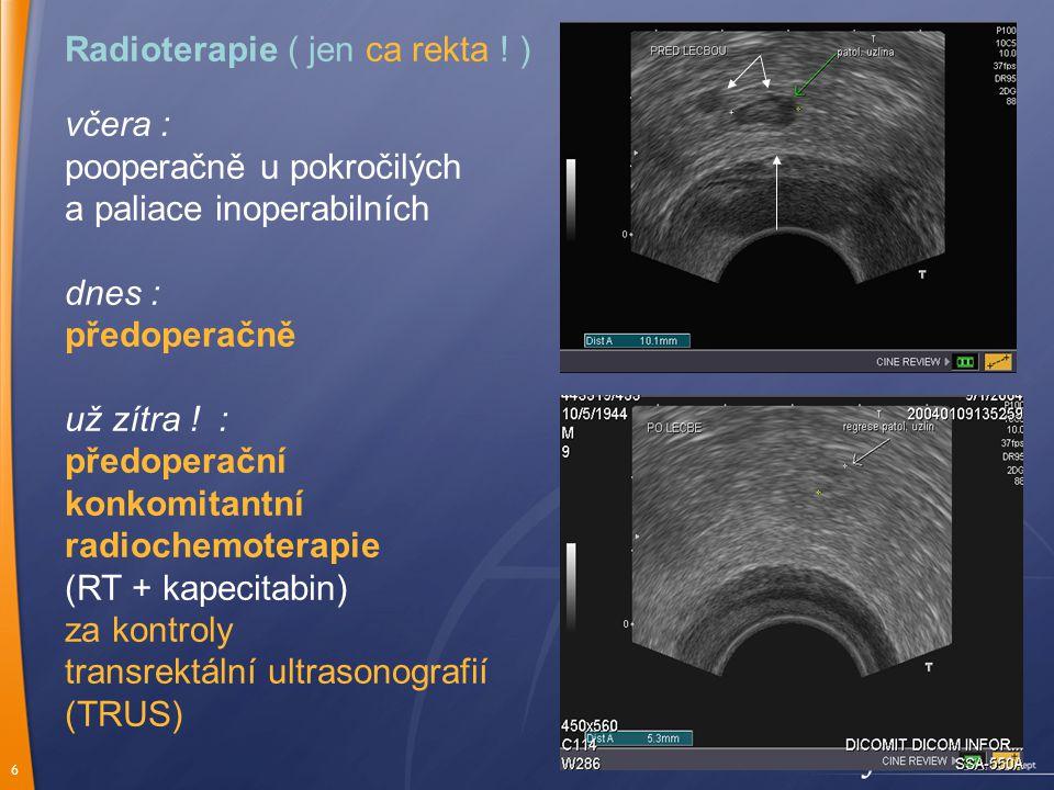 6 Radioterapie ( jen ca rekta .