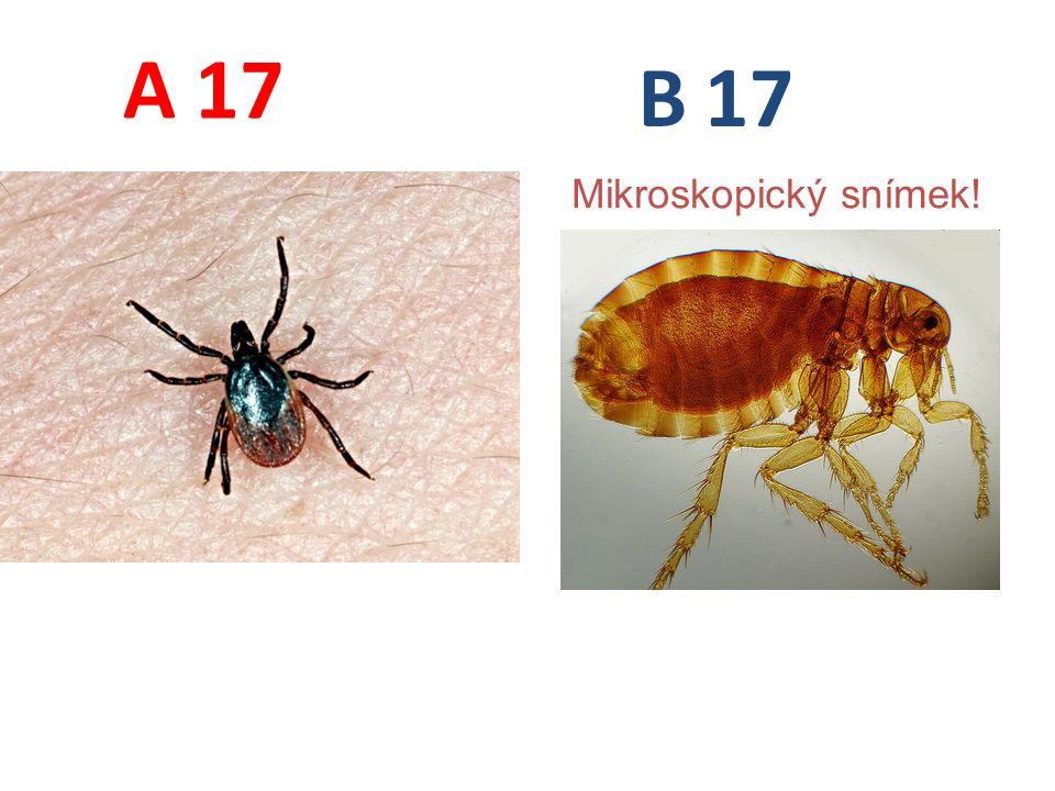 17 A B Mikroskopický snímek!