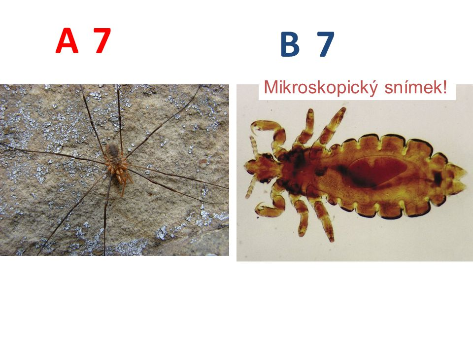 7 7 A B Mikroskopický snímek!