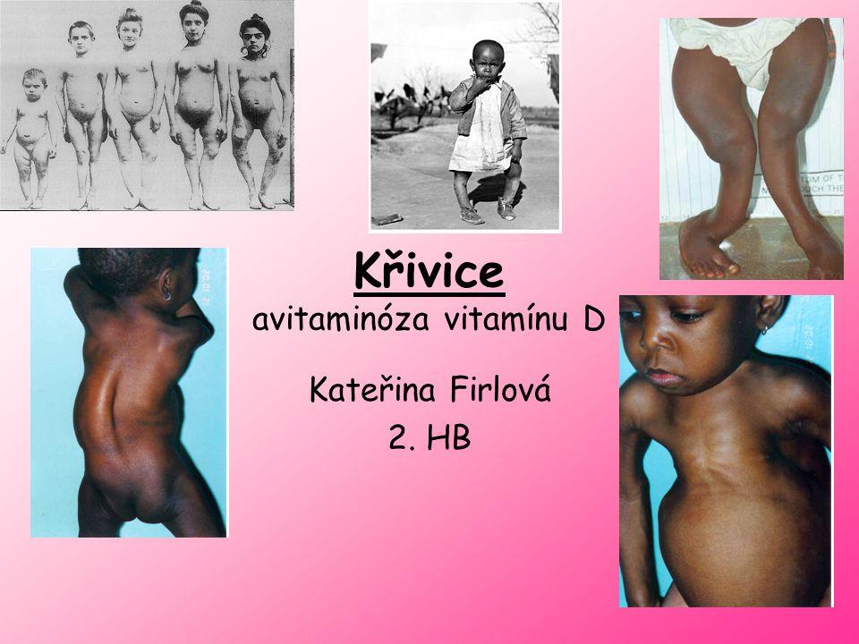Příčina onemocnění = avitaminóza nedostatek vitamínu D Vitamín D - je rozpustný v tucích - v těle vzniká v kůži při dostatku slunečního záření U malých dětí podáváme formou kapiček (kojenecká strava je chudá) Vitamin vznikající v kůži (provitamin D) i vitamin dodávaný stravou - mohou být využity pouze tehdy, pokud dobře fungují játra a ledviny.