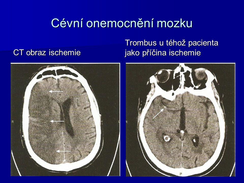 Cévní onemocnění mozku CT obraz ischemie Trombus u téhož pacienta jako příčina ischemie