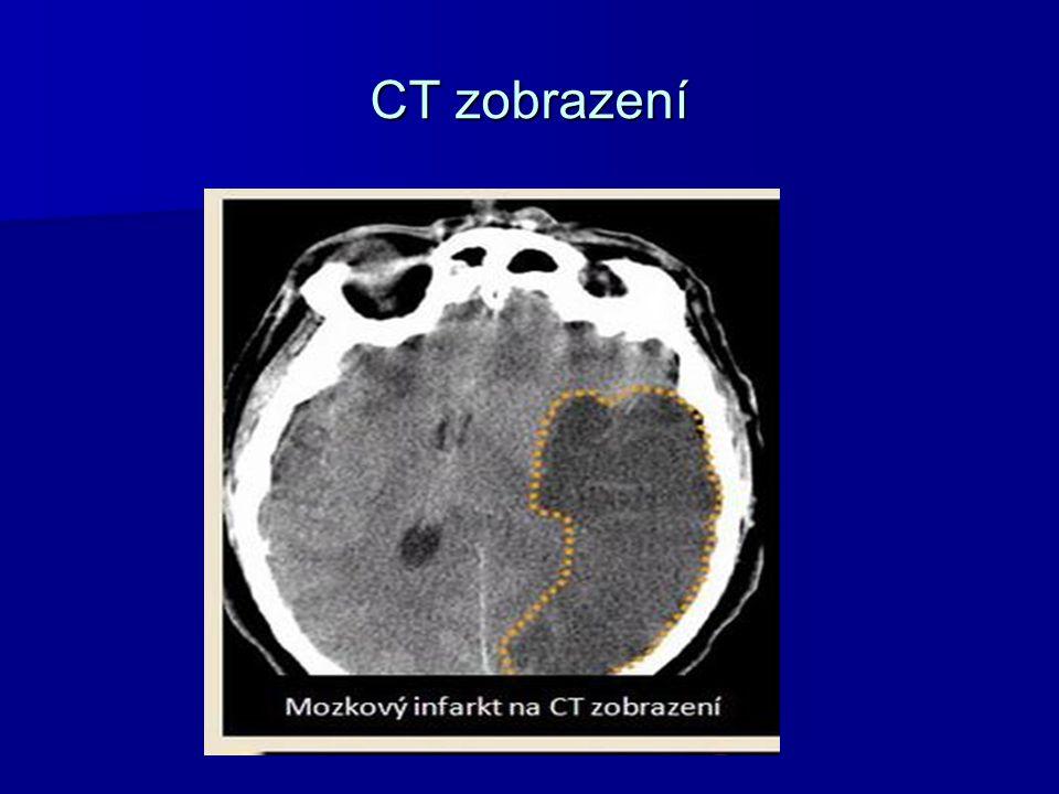 CT zobrazení