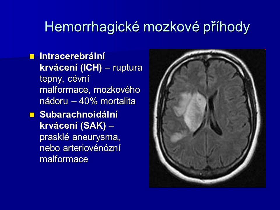 Hemorrhagické mozkové příhody Intracerebrální krvácení (ICH) – ruptura tepny, cévní malformace, mozkového nádoru – 40% mortalita Intracerebrální krvác