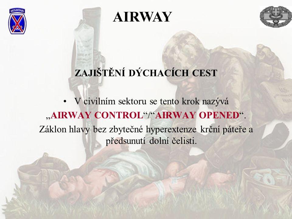 """ZAJIŠTĚNÍ DÝCHACÍCH CEST V civilním sektoru se tento krok nazývá """"AIRWAY CONTROL""""/""""AIRWAY OPENED"""". Záklon hlavy bez zbytečné hyperextenze krční páteře"""