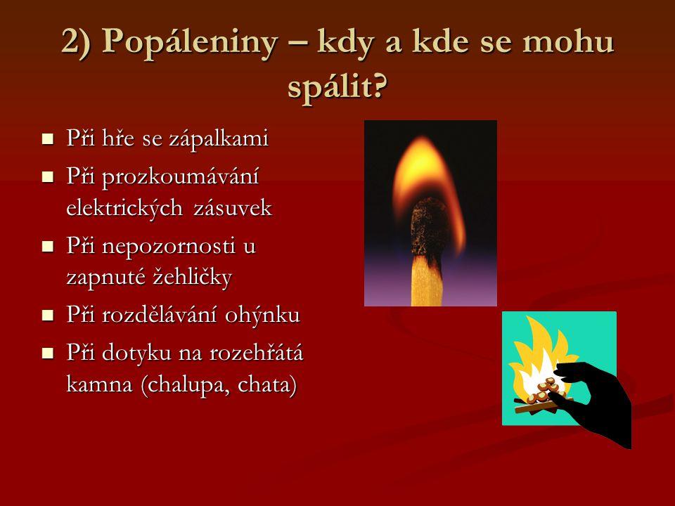 2) Popáleniny – kdy a kde se mohu spálit? Při hře se zápalkami Při hře se zápalkami Při prozkoumávání elektrických zásuvek Při prozkoumávání elektrick