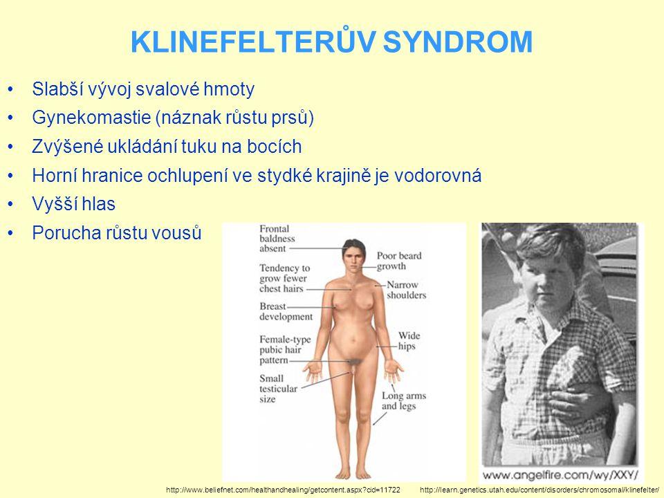 Slabší vývoj svalové hmoty Gynekomastie (náznak růstu prsů) Zvýšené ukládání tuku na bocích Horní hranice ochlupení ve stydké krajině je vodorovná Vyš