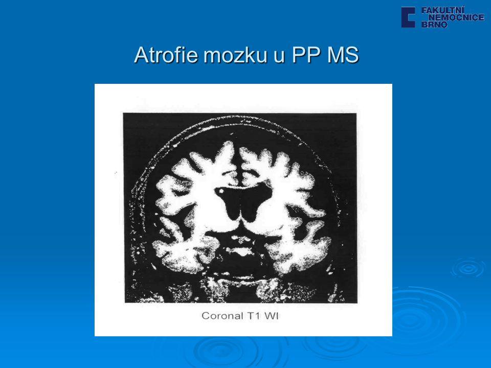 Atrofie mozku u PP MS