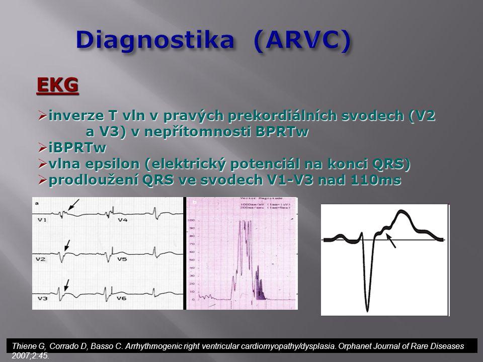 EKG  inverze T vln v pravých prekordiálních svodech (V2 a V3) v nepřítomnosti BPRTw  iBPRTw  vlna epsilon (elektrický potenciál na konci QRS)  pro