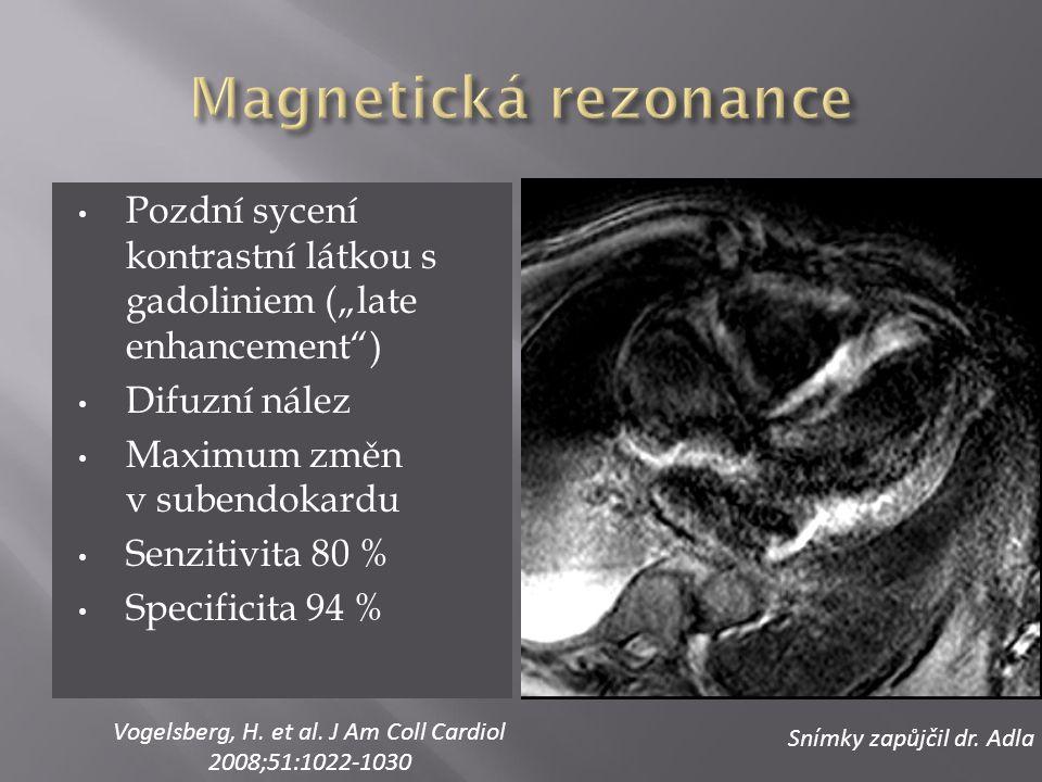 """Pozdní sycení kontrastní látkou s gadoliniem (""""late enhancement"""") Difuzní nález Maximum změn v subendokardu Senzitivita 80 % Specificita 94 % Snímky z"""