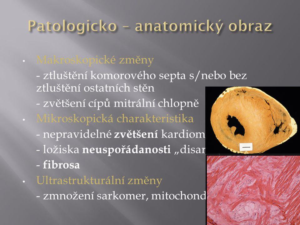  postižení myokardu nejčastěji PK (i LK)  náhrada myocytů tukovou a fibrózní tkání (arytmogenní substrát)  dilatace PK, systolická dysfunkce PK – typicky ložisková (aneurysmata), méně často difusní  mezikomorové septum bývá postiženo až v pokročilých stádiích nemoci  nejprve subepikardiální postižení Anderson EL.