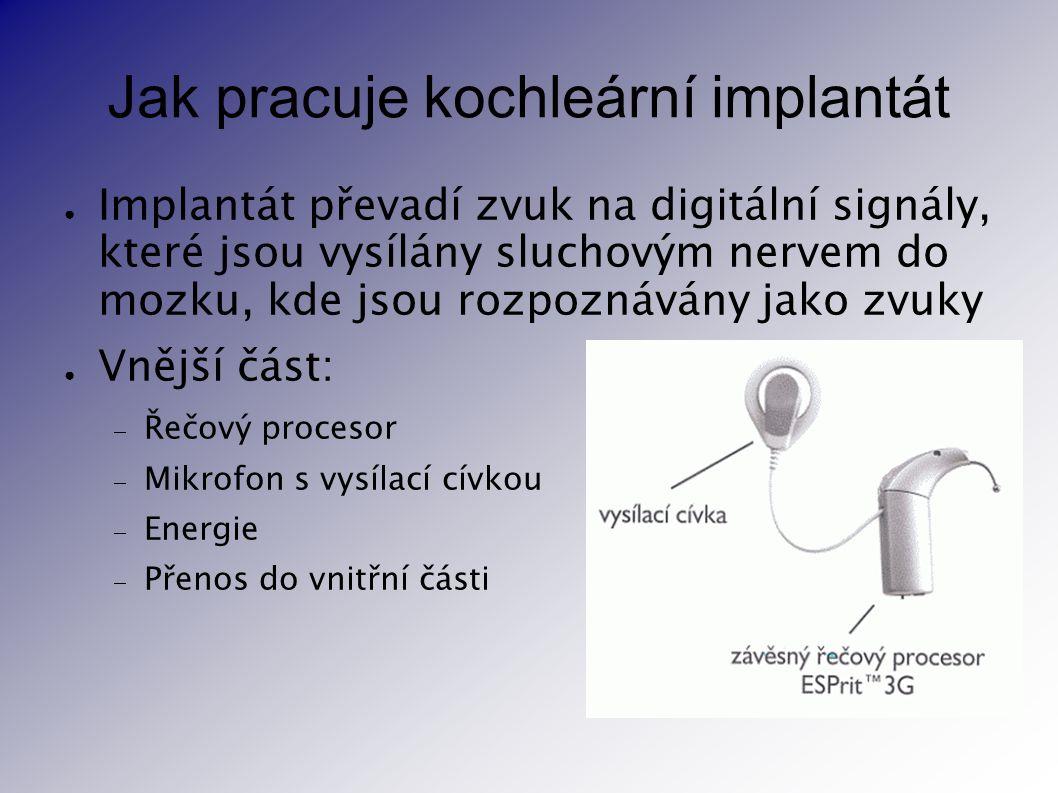 Jak pracuje kochleární implantát ● Implantát převadí zvuk na digitální signály, které jsou vysílány sluchovým nervem do mozku, kde jsou rozpoznávány j