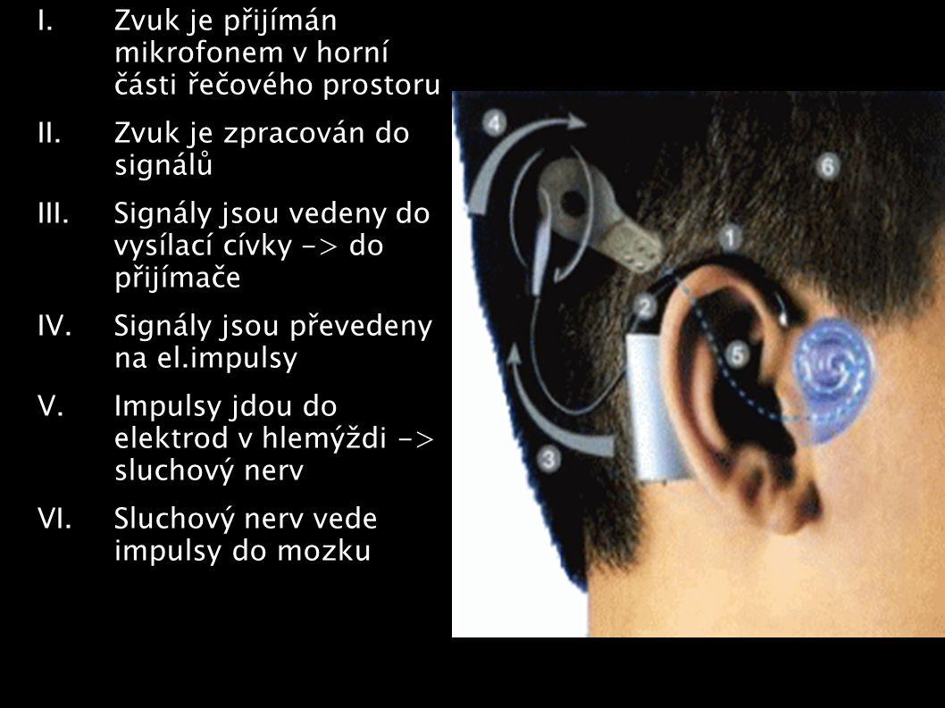 I.Zvuk je přijímán mikrofonem v horní části řečového prostoru II.Zvuk je zpracován do signálů III.Signály jsou vedeny do vysílací cívky -> do přijímač