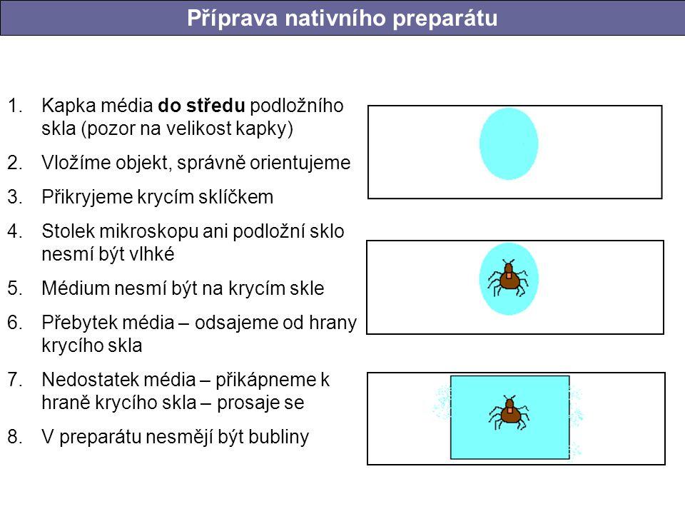 1.Kapka média do středu podložního skla (pozor na velikost kapky) 2.Vložíme objekt, správně orientujeme 3.Přikryjeme krycím sklíčkem 4.Stolek mikrosko