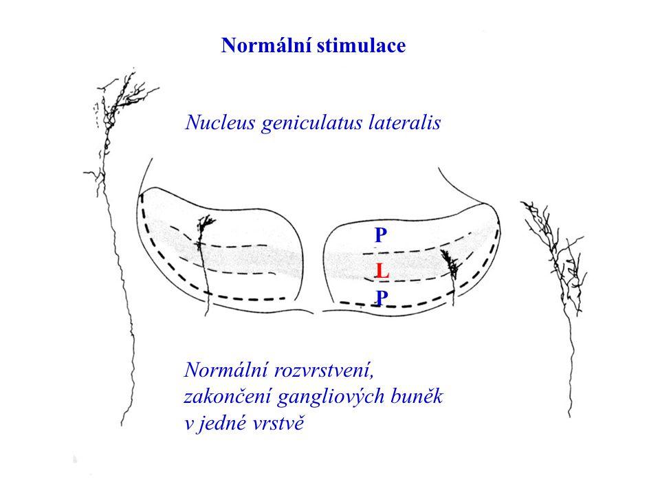 Nucleus geniculatus lateralis Normální stimulace P L P Normální rozvrstvení, zakončení gangliových buněk v jedné vrstvě