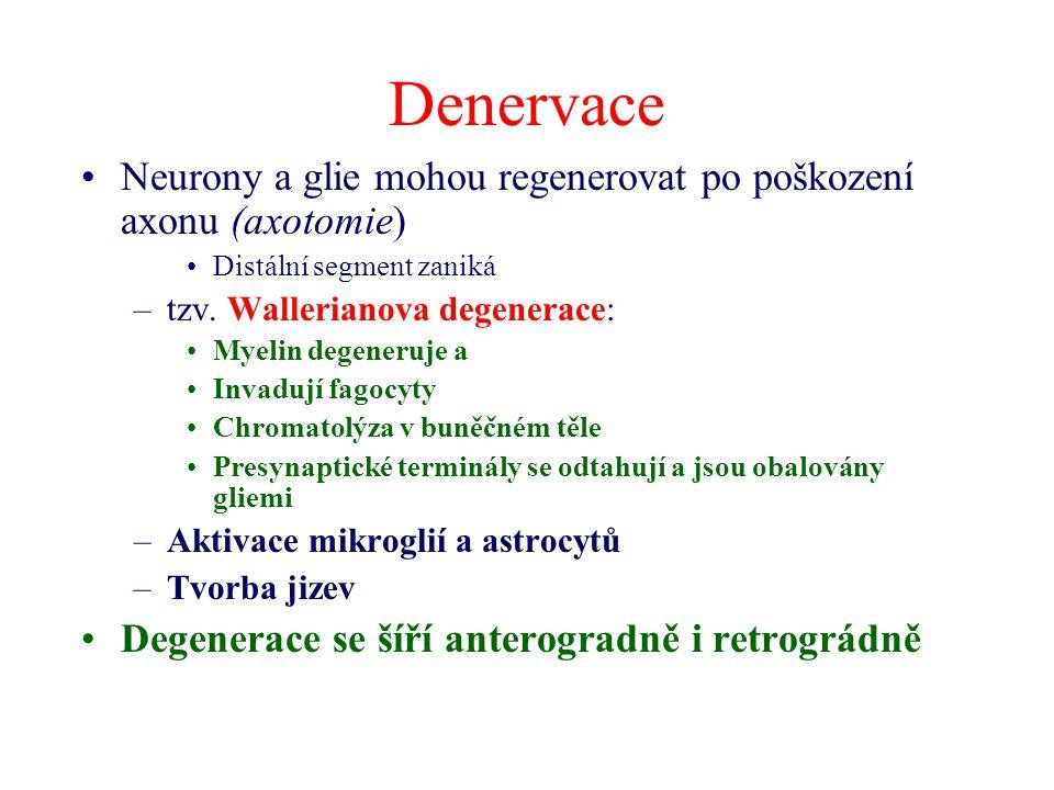 Denervace Neurony a glie mohou regenerovat po poškození axonu (axotomie) Distální segment zaniká –tzv.