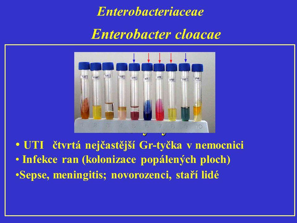 Enterobacteriaceae Klinický význam UTI čtvrtá nejčastější Gr-tyčka v nemocnici Infekce ran (kolonizace popálených ploch) Sepse, meningitis; novorozenci, staří lidé Enterobacter cloacae