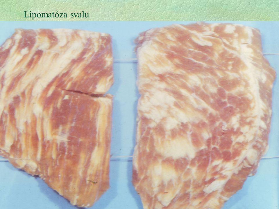 2 Lipomatóza svalu