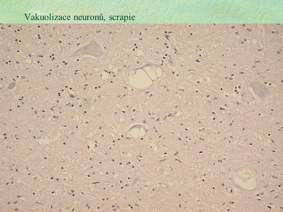 25 Vakuolizace neuronů, scrapie