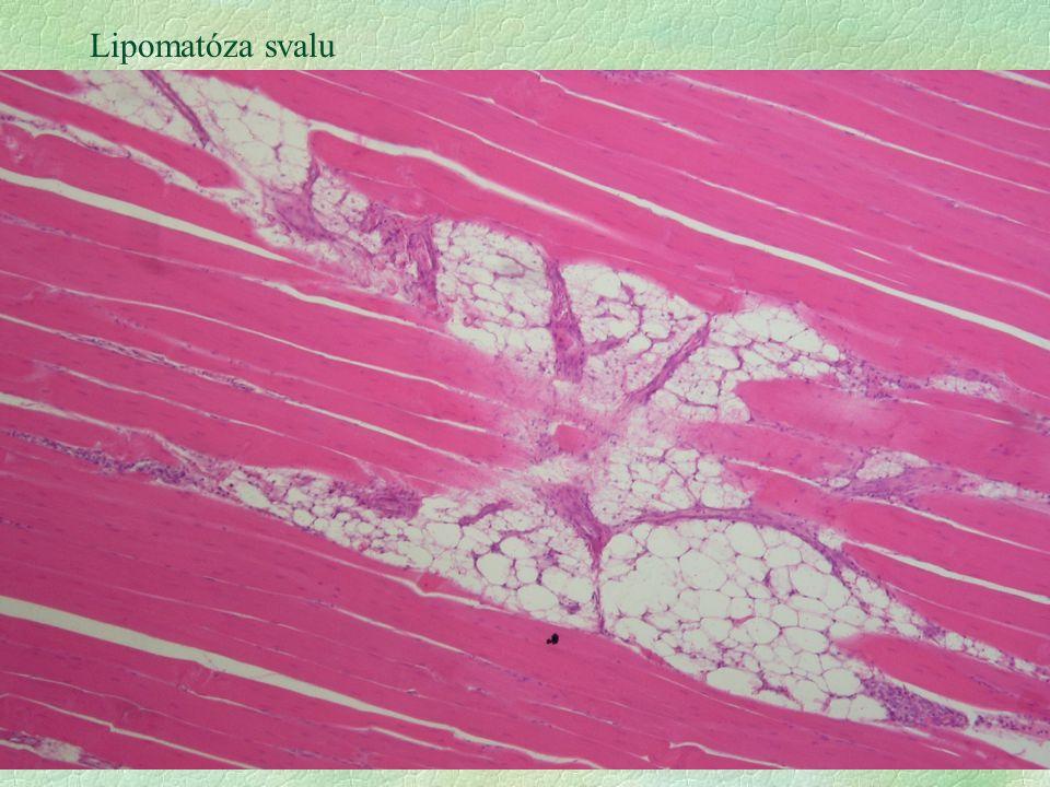 4 Lipidóza glomerulu, kočka