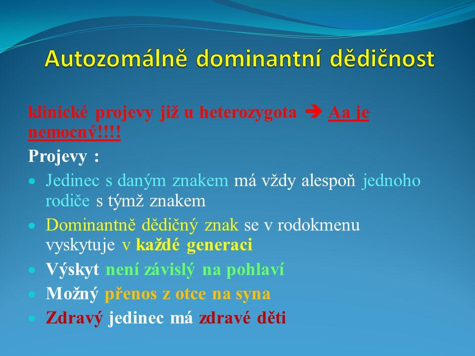 klinické projevy již u heterozygota  Aa je nemocný!!!! Projevy :  Jedinec s daným znakem má vždy alespoň jednoho rodiče s týmž znakem  Dominantně d