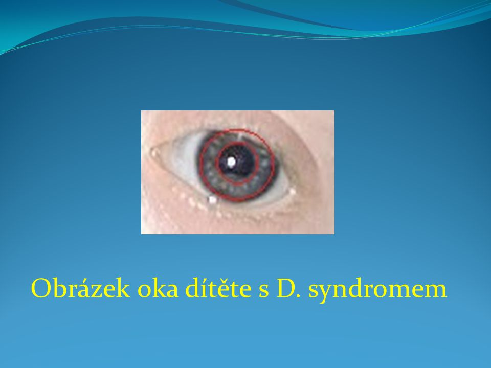 Obrázek oka dítěte s D. syndromem