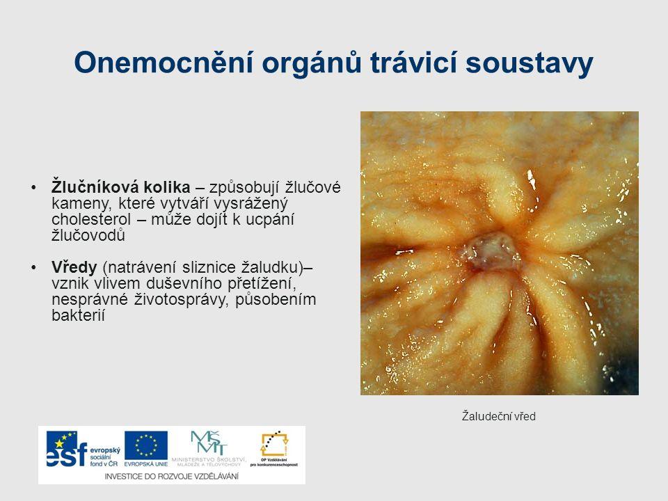 Onemocnění orgánů trávicí soustavy Žlučníková kolika – způsobují žlučové kameny, které vytváří vysrážený cholesterol – může dojít k ucpání žlučovodů V