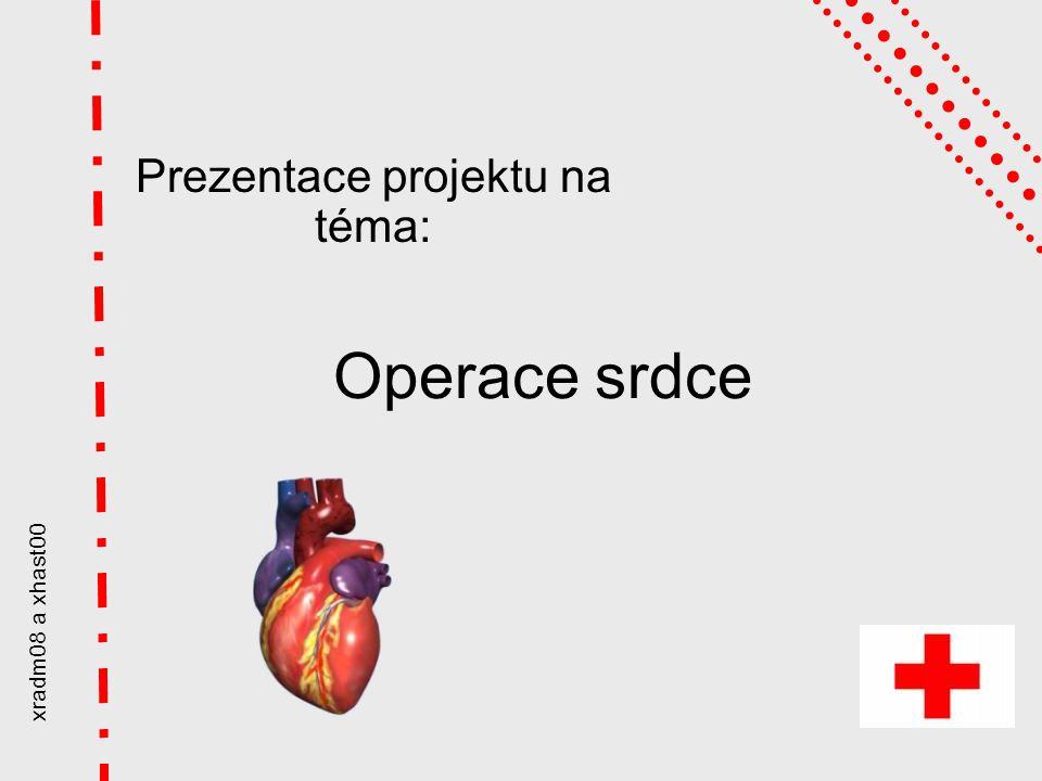 xradm08 a xhast00 Operace srdce Prezentace projektu na téma: