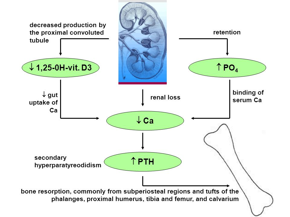  PO 4  1,25-0H-vit. D3  Ca  PTH binding of serum Ca decreased production by the proximal convoluted tubule retention renal loss  gut uptake of Ca