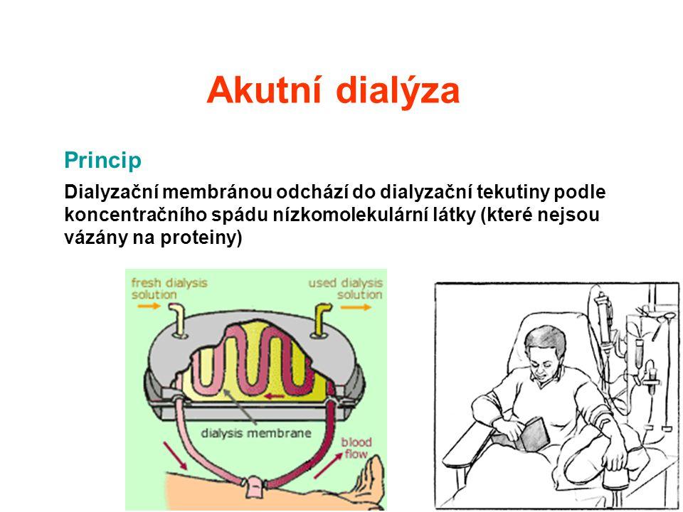 Akutní dialýza Princip Dialyzační membránou odchází do dialyzační tekutiny podle koncentračního spádu nízkomolekulární látky (které nejsou vázány na p
