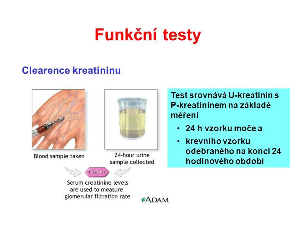 Clearence kreatininu Test srovnává U-kreatinin s P-kreatininem na základě měření 24 h vzorku moče a krevního vzorku odebraného na konci 24 hodinového