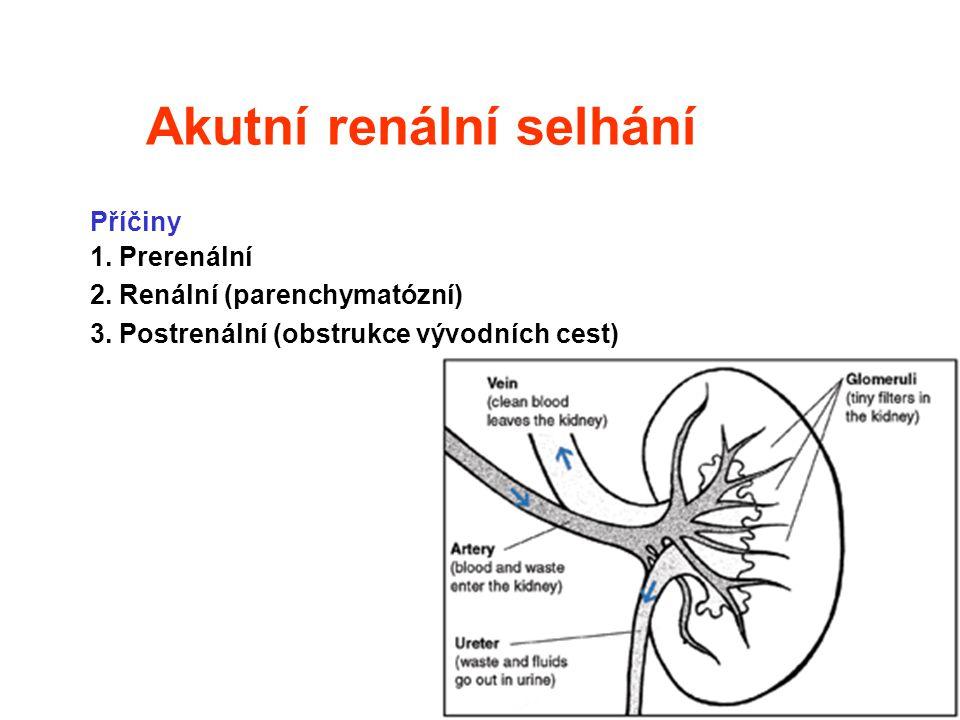 Akutní renální selhání Příčiny 1. Prerenální 2. Renální (parenchymatózní) 3. Postrenální (obstrukce vývodních cest)