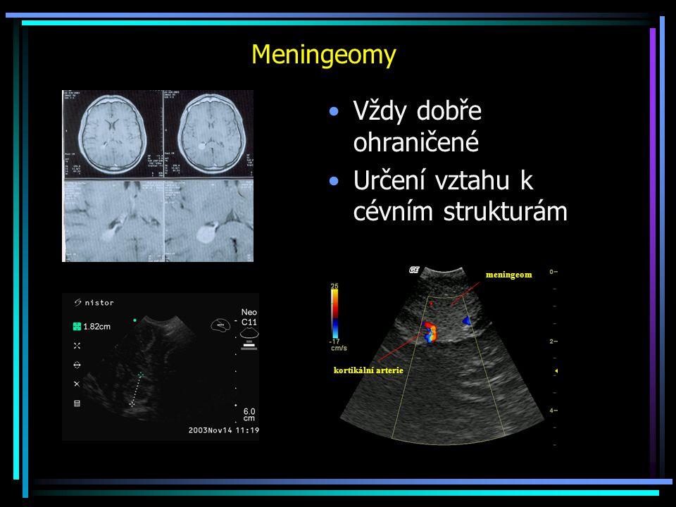 Meningeomy Vždy dobře ohraničené Určení vztahu k cévním strukturám meningeom kortikální arterie