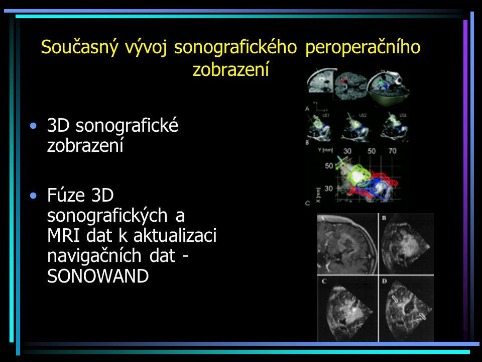 Současný vývoj sonografického peroperačního zobrazení 3D sonografické zobrazení Fúze 3D sonografických a MRI dat k aktualizaci navigačních dat - SONOW