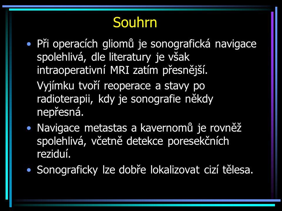Souhrn Při operacích gliomů je sonografická navigace spolehlivá, dle literatury je však intraoperativní MRI zatím přesnější. Vyjímku tvoří reoperace a
